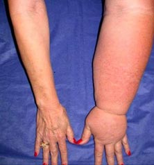 Picture of lymphedema from breast cancer